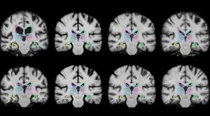 MIT Neural Network Accelerates MRI Image Processing by 1,000 Times