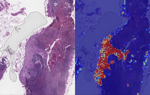 Google's AI is now better than doctors at spotting breast cancer