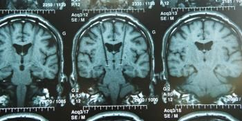 New Brain Development Disorder Identified by Scientists