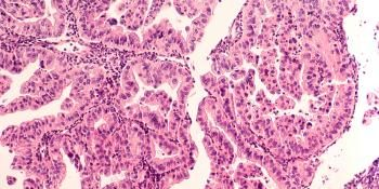 Artificial Intelligence can Predict Survival of Ovarian Cancer Patients